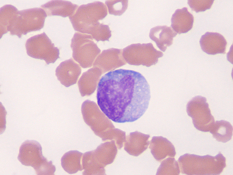 Monocyte Pictures to Pin on Pinterest - ThePinsta