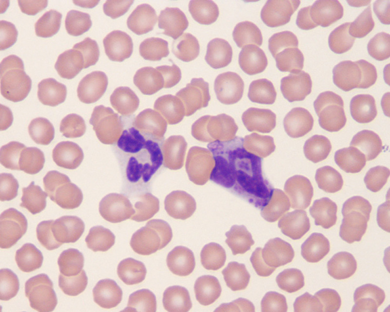 The gallery for --> Eosinophils Basophils Neutrophils