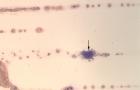 Platelet clump
