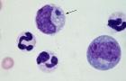 <i>Ehrlichia canis</i>