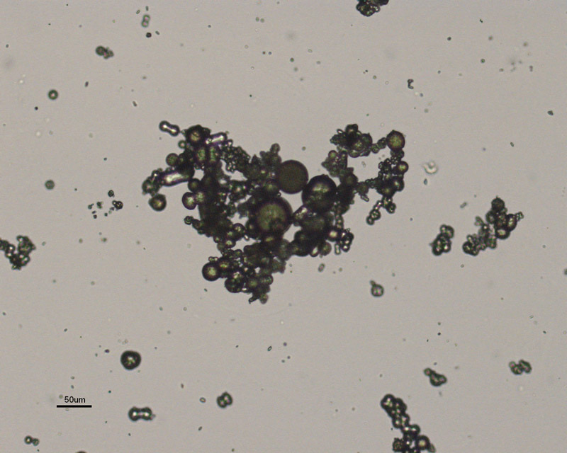 Calcium Carbonate Crystals In Urine Sediment Pictures to ...