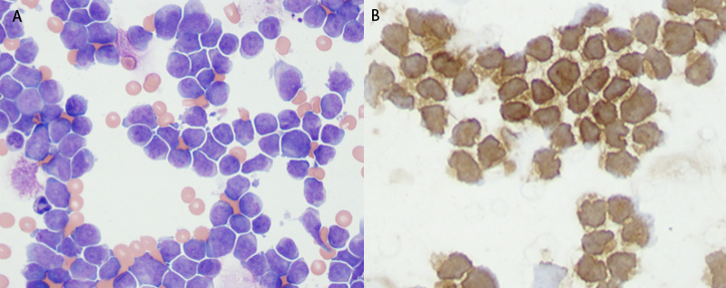T cell lymphoma in a dog: CD3 immunocytochemical stain
