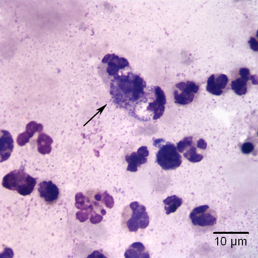 Fig 3 Aqueous Humor Aspirate Wright S Stain 1000x