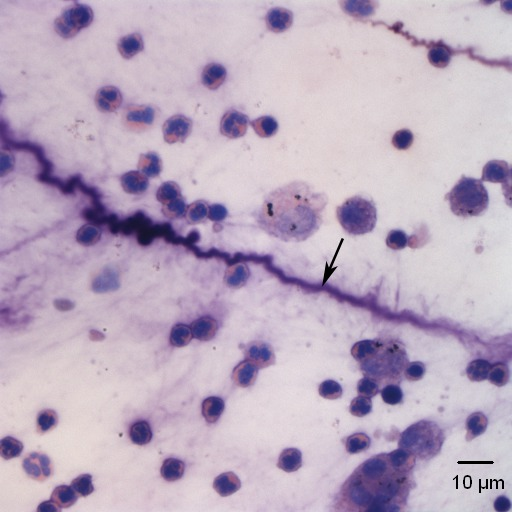 plaque smear direct stain Slide preparation: direct stain microbial cells are small and transparent stains are often used to increase contrast between the cells and the background, making.
