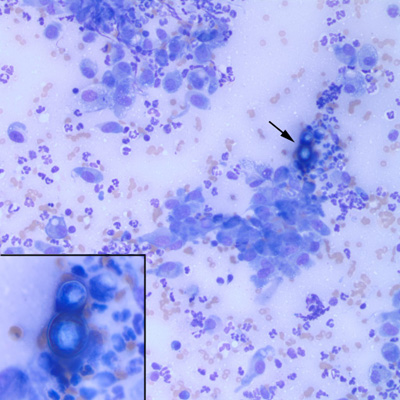 blastomycosis in dogs