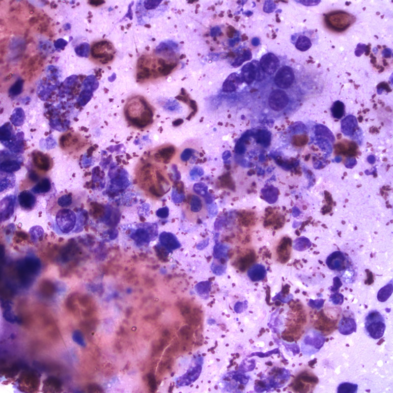 Figure 2A. Left tarsus joint aspirate from a tortoise (Wright's stain 500x)