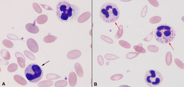 Toxic changes of neutrophils in an Alpaca | eClinpath Vacuolization Of Neutrophils