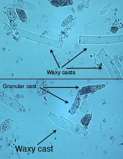 Waxy And Granular Casts In Urine Eclinpath