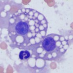 Fat droplets from a renal tubular epithelial cell in a cat.