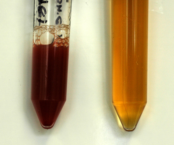 Cialis Blood In Urine