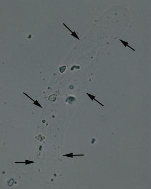 Hyaline cast on wet prep of Fine Granular Cast In Urine