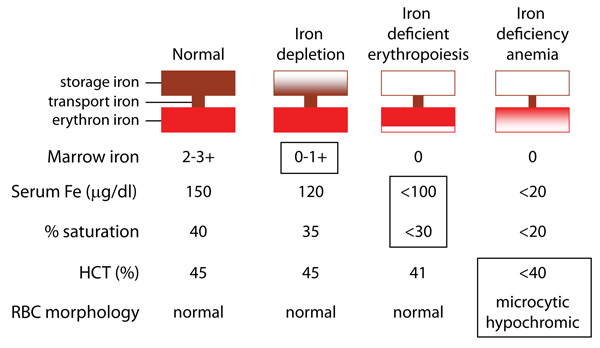 Development of iron deficiency anemia | eClinpath