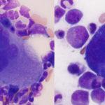 Megakaryocytes